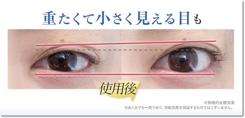 リッドキララの目が大きく見える効果